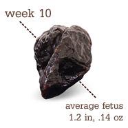 Week 10 Prune